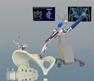 Computer-assisted Hip Replacement